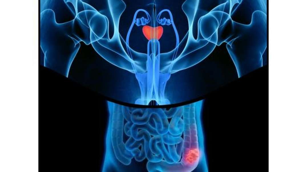 Nuben Menkarayzz - Why There Is A Prostate & Colon Cancer Problem
